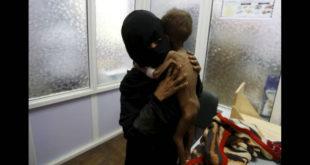 Στην Υεμένη κάθε μέρα σκοτώνται παιδιά.