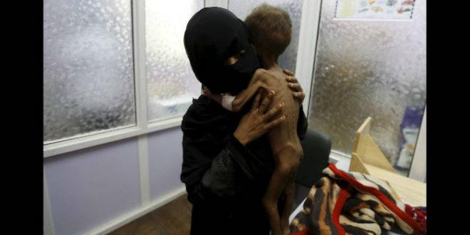Υεμένη: Οκτώ παιδιά σκοτώνονται ή τραυματίζονται κάθε μέρα