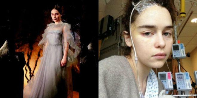 Εμίλια Κλαρκ: Ένα κομμάτι του εγκεφάλου μου έχει πεθάνει